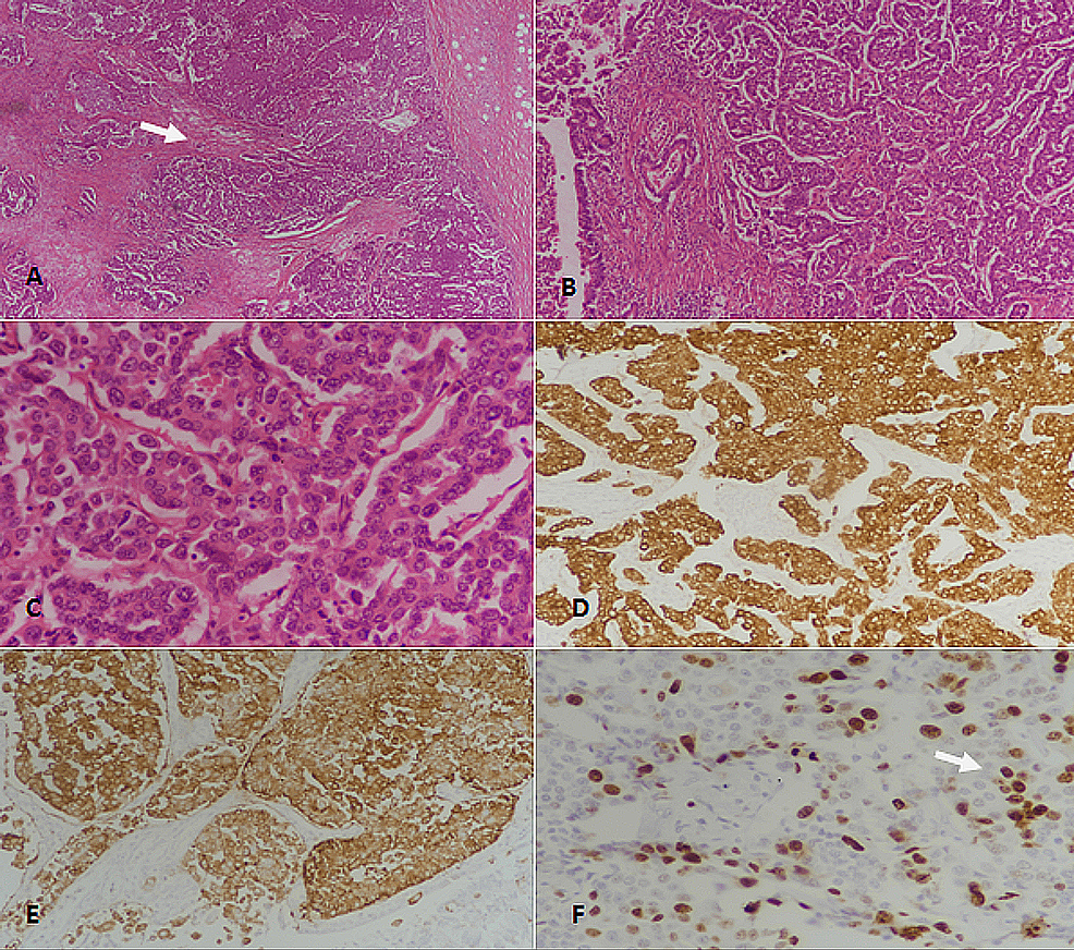 Well-differentiated-neuroendocrine-tumor-(WDNET),-grade-3.-(A):-H&E-stained-section-at-40x-magnification-showing-nests-and-trabeculae-of-tumor-cells-(arrow).-(B):-H&E-stained-section-at-100x-magnification-revealing-neuroendocrine-tumor-with-organoid-architecture.-(C):-400x-magnification-(H&E-staining)-showing-tumor-cells-with-moderate-to-marked-nuclear-atypia-and-coarse-chromatin.-(D):-Pancytokeratin-(CKAE1/AE3)-staining-showing-strong-diffuse-positivity.-(E):-Synaptophysin-immunostaining-depicting-diffuse-positivity.-(F):-Ki67-immunostaining-showing-more-than-20%-proliferative-index;-some-tumor-cells-show-nuclear-positivity-(arrow).