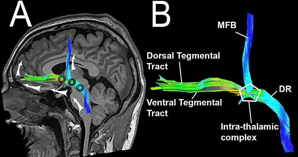 ascending reticular activating system pdf
