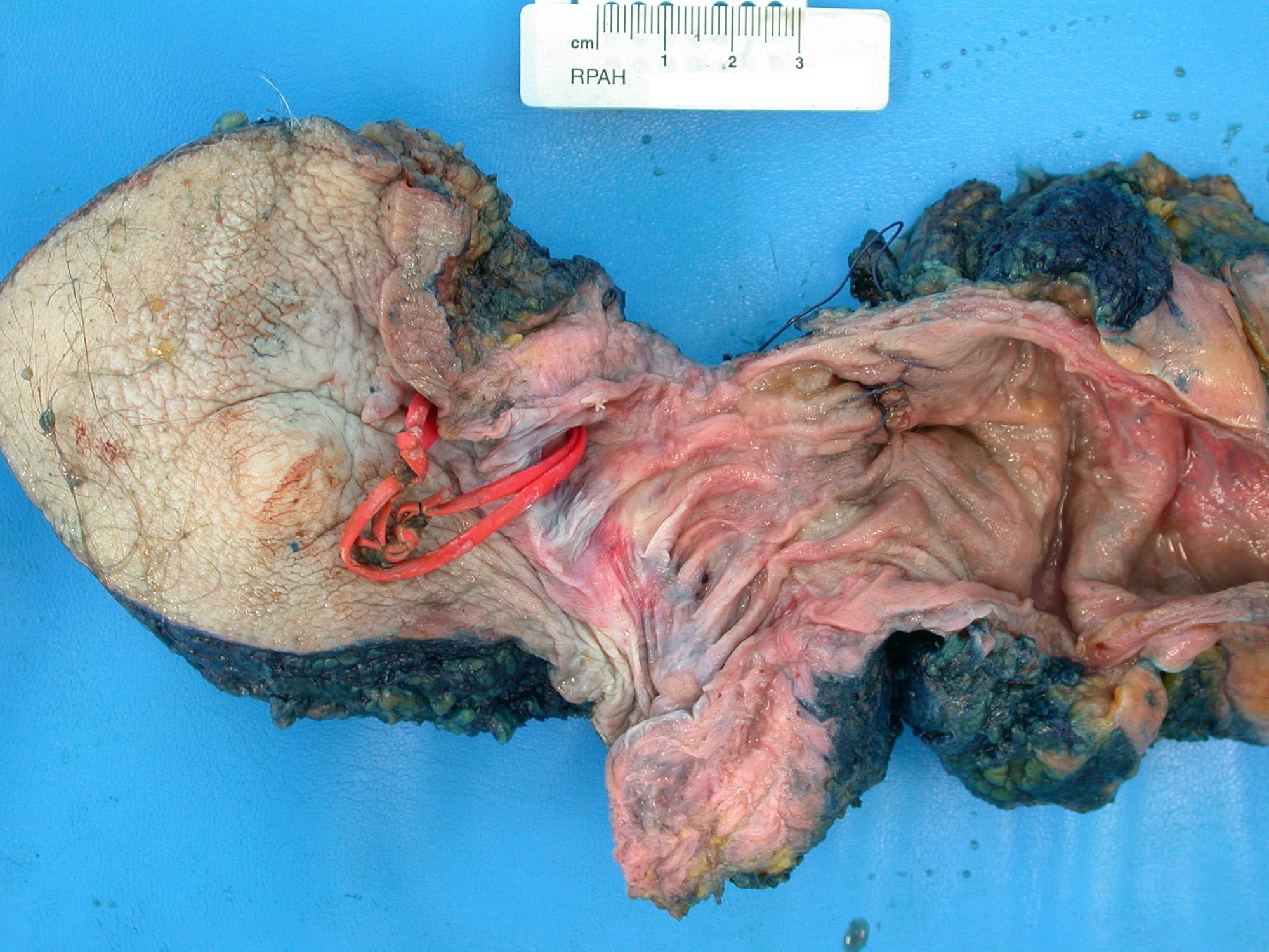 cureus synchronous sigmoid colon cancer seeding a fistula in ano