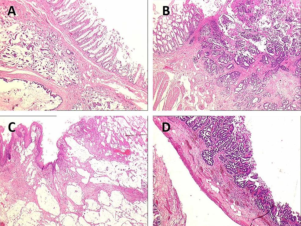 Microscopic-views-of-the-sigmoid,-fistula-in-ano-and-caecum
