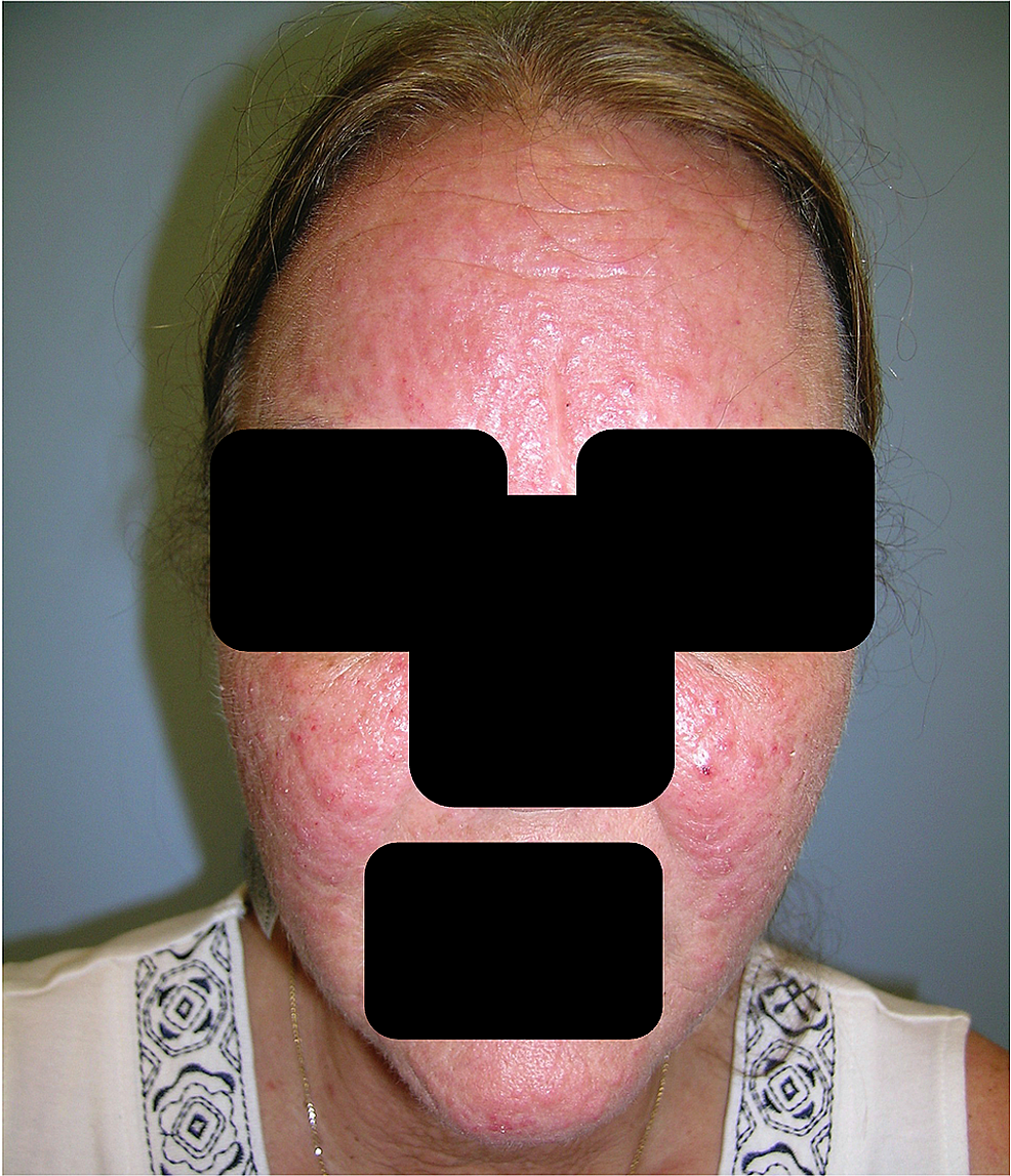 Clinical-photograph-of-the-face-at-the-time-of-presentation-to-our-clinic,-showing-extensive-erythematous-papules-on-the-face-and-anterior-neck.