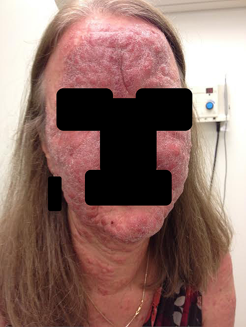 Clinical-photograph-of-the-face-at-six-month-follow-up,-showing-progression-to-thickened-plaques.