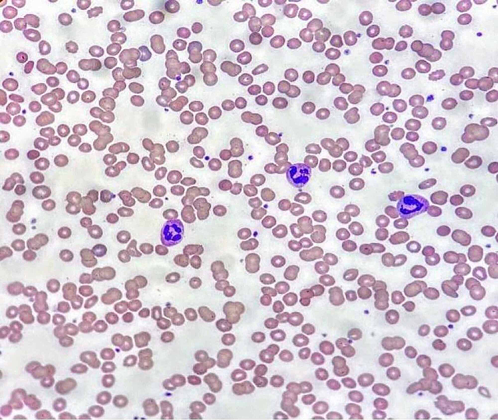 Peripheral-blood-smear-at-37-degree-Celsius