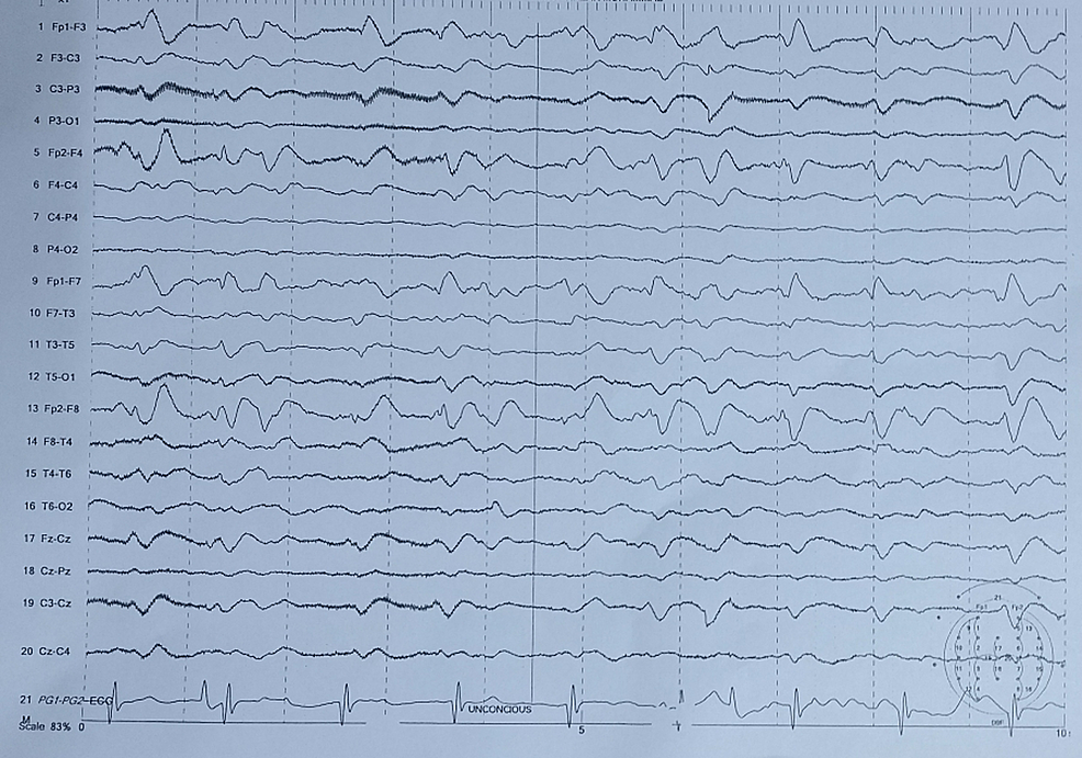 EEG-showing-severe-diffuse-encephalopathy-of-non-specific-nature.