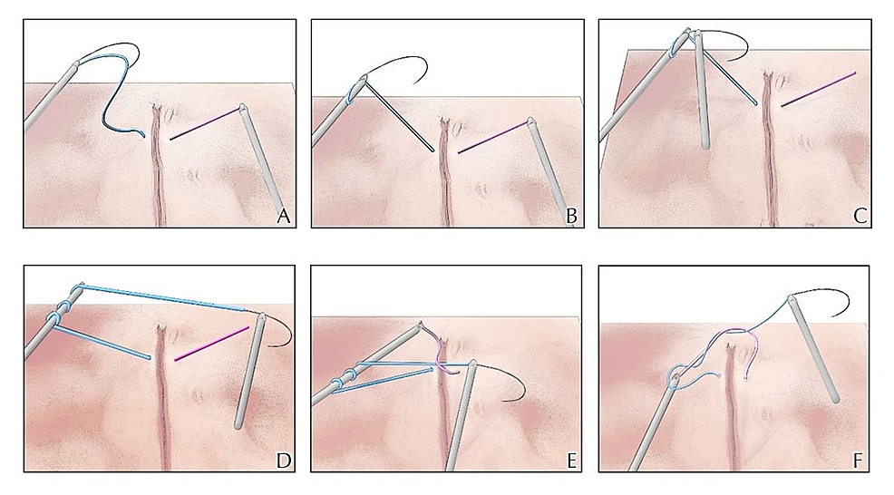 Coiled-technique-for-intracorporeal-suturing