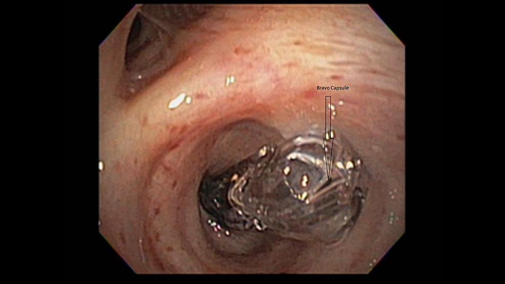 Flexible-Bronchoscopy-Showing-Bravo®-Capsule-Lodged-in-the-Right-Lower-Lobe-Bronchus-Just-Distal-to-the-Bronchus-Intermedius