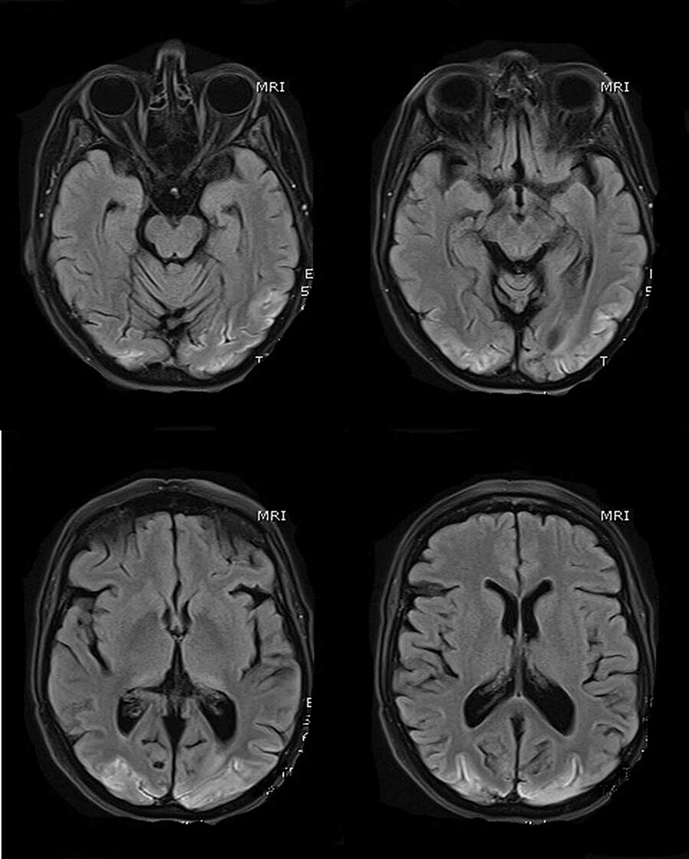 MR-scans-of-the-brain-(selected-T1-sequences)-show-bilateral-symmetrical-hyper-intensity-involving-the-bilateral-occipital-lobe-cortex;-the-changes-are-consistent-with-cortical-pseudo-laminar-necrosis-as-a-complication-of-posterior-reversible-encephalopathy-syndrome-(PRES)