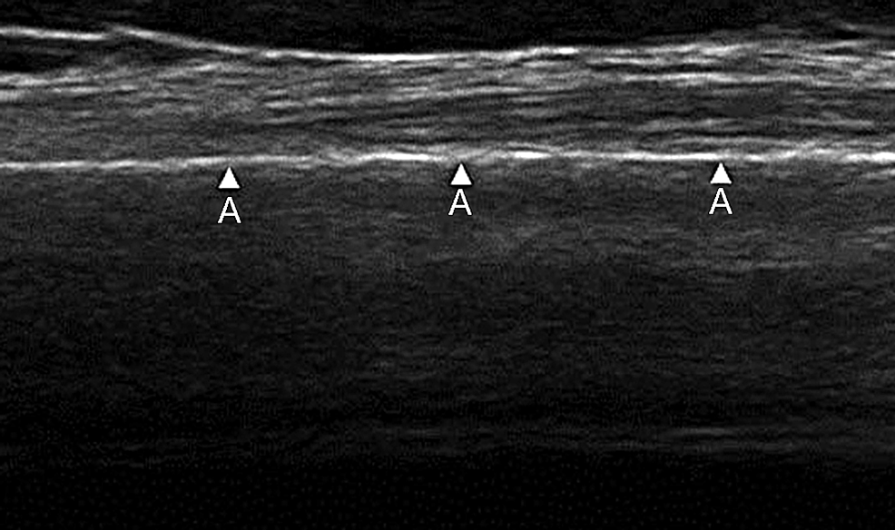Ultrasound-of-intact-tibial-diaphyseal-cortex-as-demonstrated-by-the-arrowheads