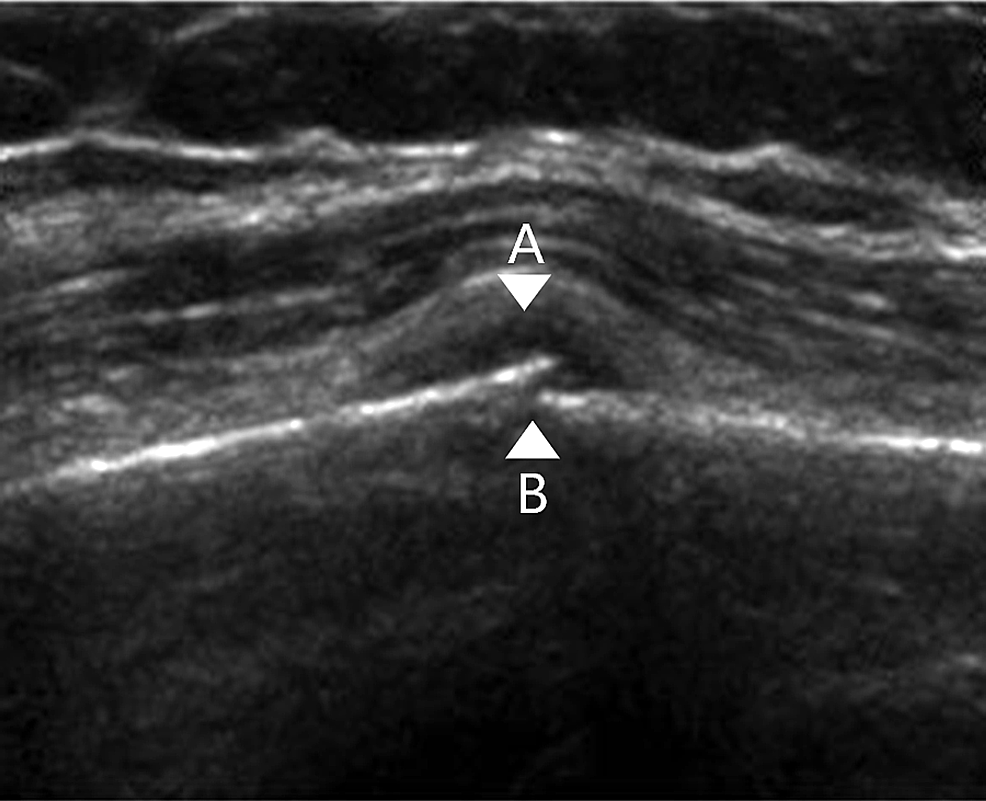 Ultrasound-of-a-diaphyseal-tibial-fracture-demonstrating-a-break-in-the-cortex,-periosteal-haemtoma-formation-and-periosteal-lift.