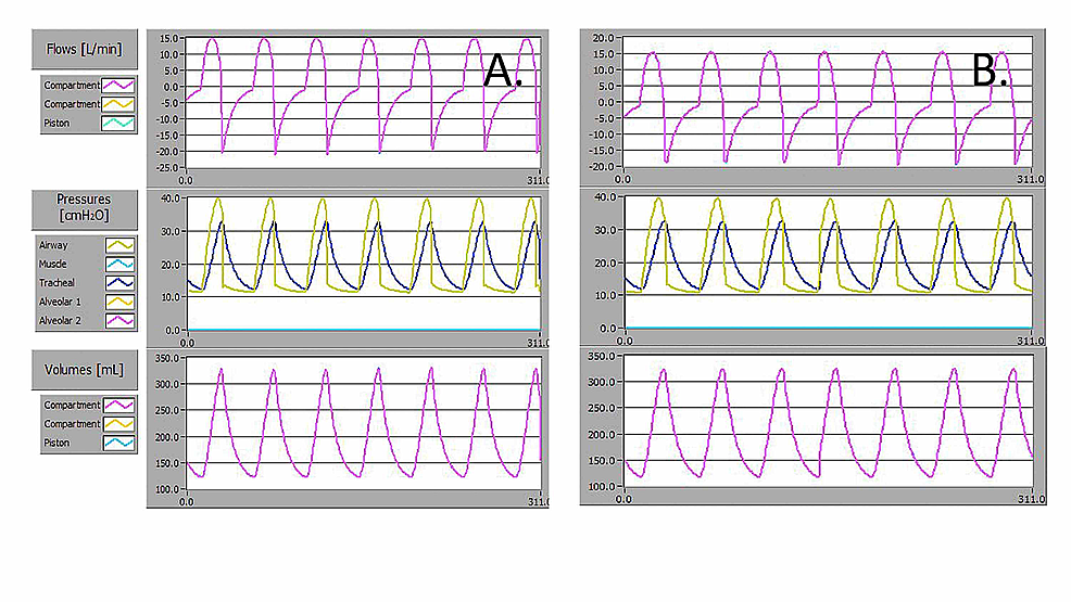 Flow,-Paw,-and-VT-waveforms-for-delivered-breaths-for-a-severe-disease-simulated-patient-lung-model-with-resistance-50-cmH2O.L-1.s-1-and-compliance-10-ml.cmH2O-1-using-an-AMBU-Spur-II-bag-with-10-cmH2O-PEEP-at-A)-day-zero,-and-B)-after-24-hours-of-continuous-operation.