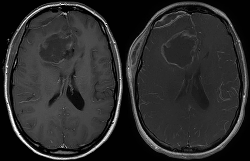 Postoperative-T1-weighted-MRI-with-contrast