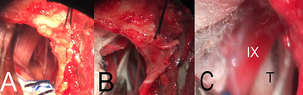 Intraoperative-images-of-microvascular-decompression-of-the-glossopharyngeal-nerve.