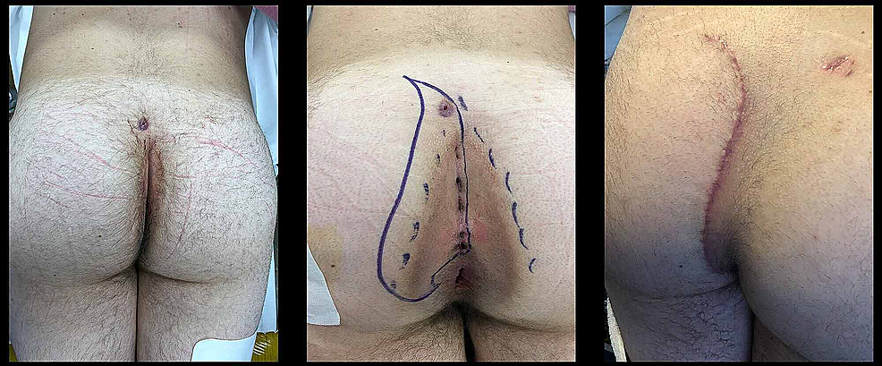 The-cleft-lift-on-a-patient-with-perianal-disease-and-a-secondary-sinus-tract-opening.-The-left-image-is-pre-operative,-the-central-center-image-shows-the-area-for-proposed-excision,-and-the-right-image-to-the-right-is-six-weeks-post-operative.