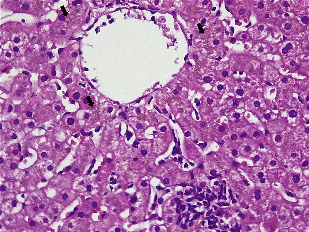 Histopathology-of-the-liver-showing-extensive-perivenular-cholestasis-(arrows,-hematoxylin-and-eosin-stain,-20x)
