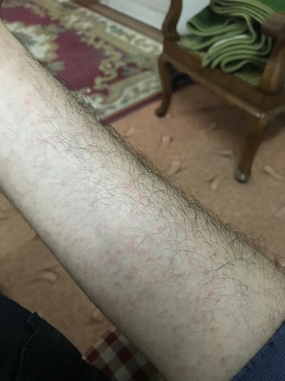 Erythematous-maculopapular-rash.