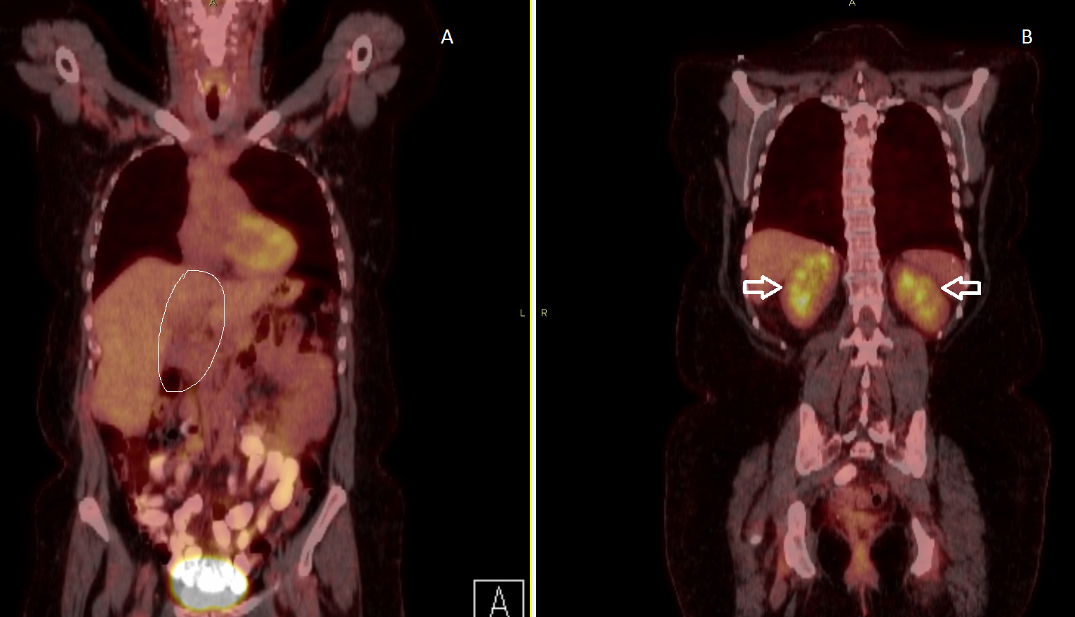 Cureus | Large Unilateral Adrenal Mass with Surrounding Brown Fat: A ...