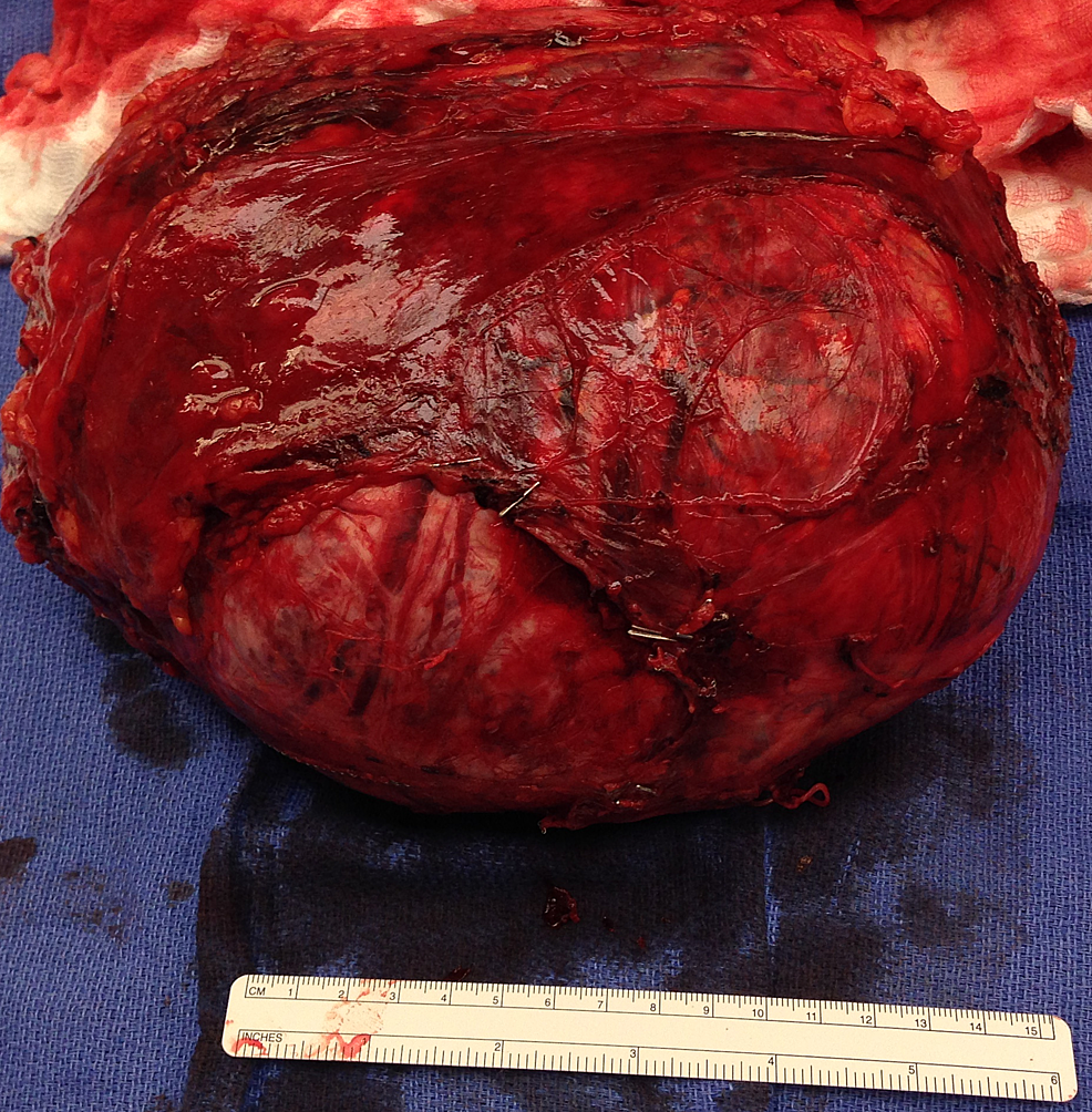 Photograph-of-the-resected-right-adrenal-mass.-The--surgical-specimen-revealed-a-bulging-ovoid-soft-tissue-mass-measuring-20.5-x-18-x-10-cm-and-weighing-2,582-g.-The-soft-tissue-margin-is-predominantly-smooth-with-minimal-amount-of-soft-tissue-adherent-to-the-capsular-surface.