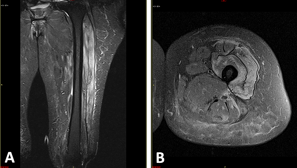 Coronal-and-cross-sectional-MRI-of-the-thigh