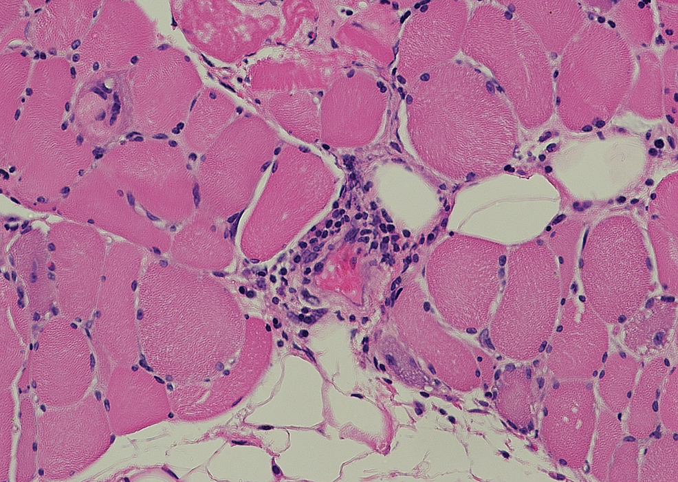 Muscle-biopsy-of-thigh