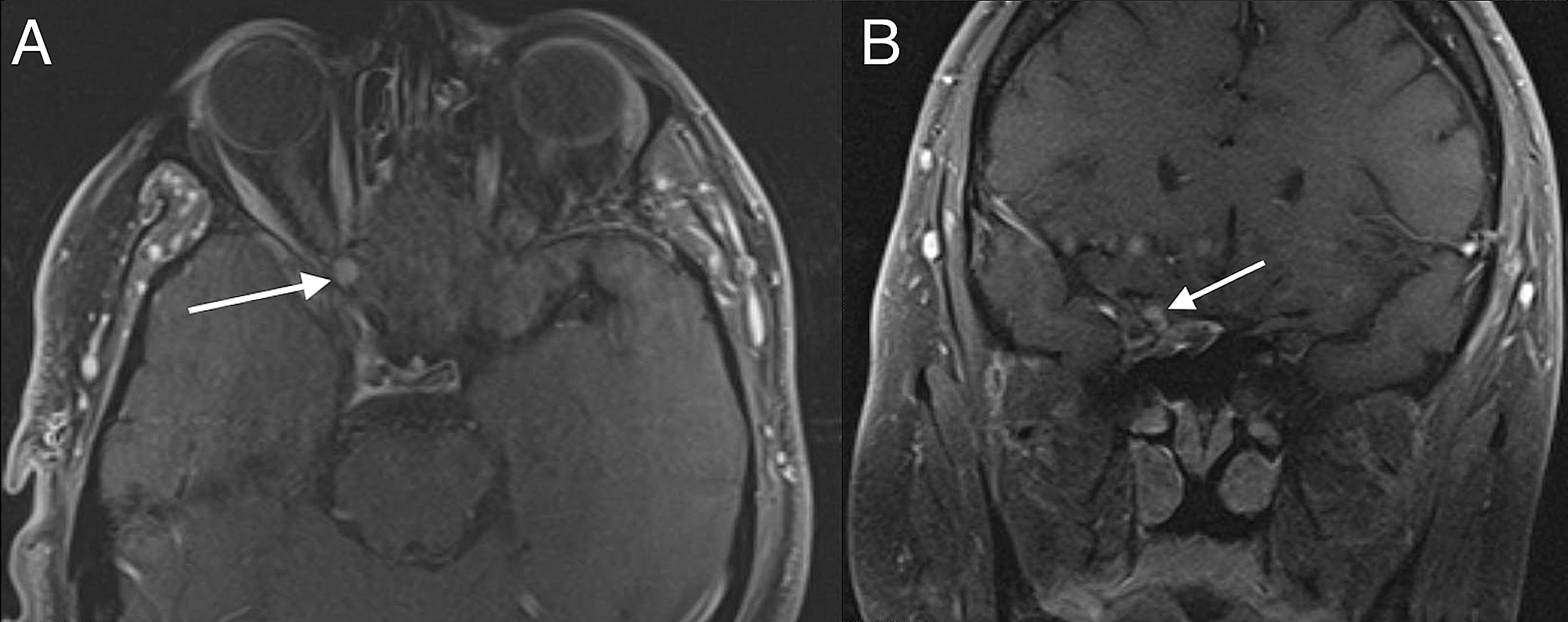 Cureus   A Rare Case of Optic Nerve Schwannoma: Case Report and ...