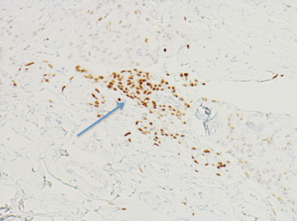 Immunohistochemistry-showing-minimal-progesterone-receptor-expression-for-patient-one-