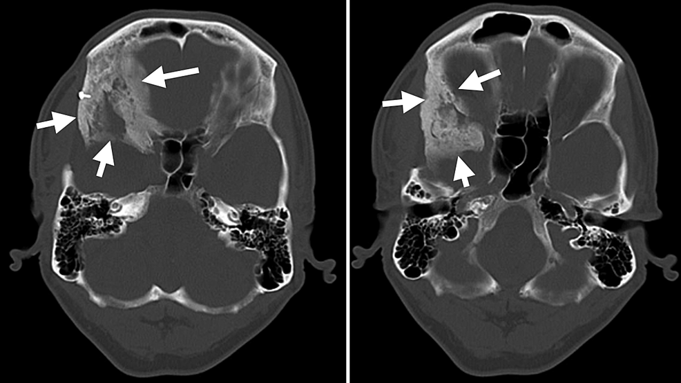 Preoperative-computed-tomography-scan-bone-window-images