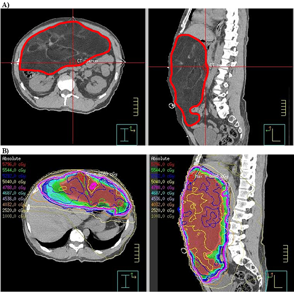 CT-scan-and-radiotherapy-plan-of-a-retroperitoneal-sarcoma-patient