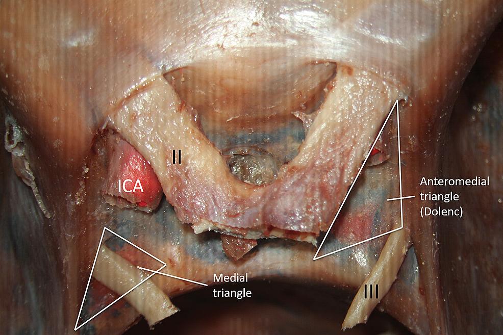 Cadaveric-dissection-of-the-sellar-region.
