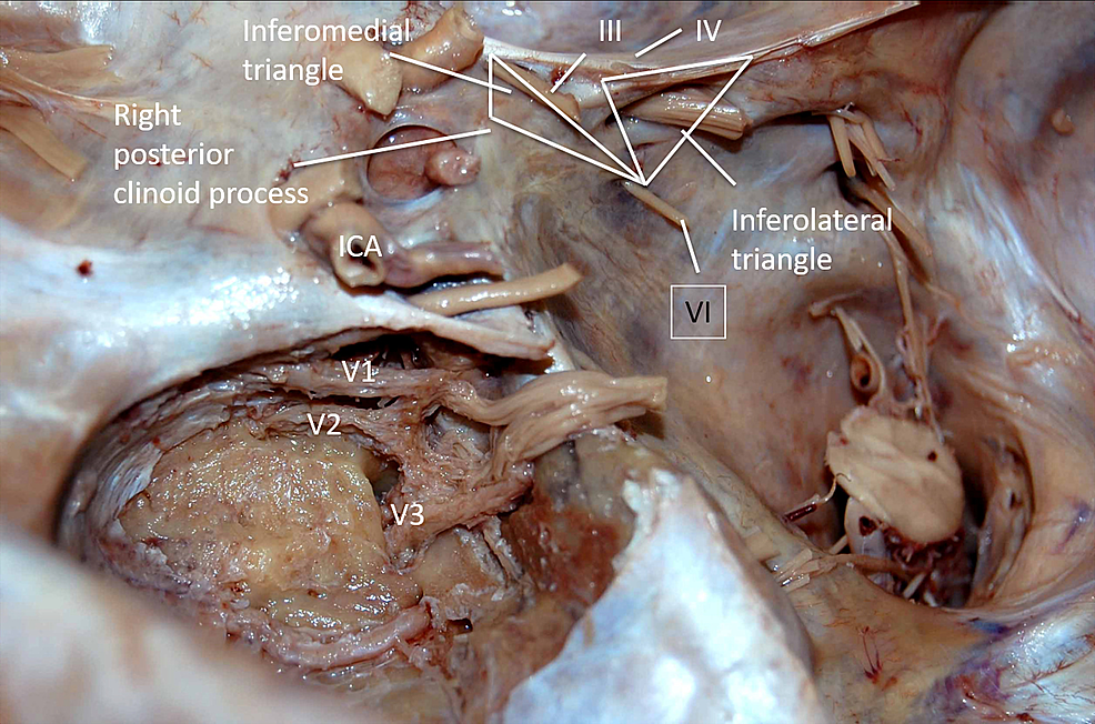 Left-posterolateral-dissection-of-the-anatomy-of-the-inferomedial-and-inferolateral-triangles.