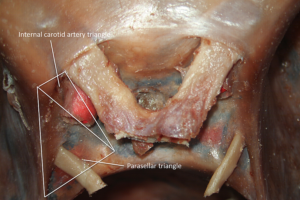 Superior-view-of-the-parasellar-and-internal-carotid-artery-triangles-(original-image).