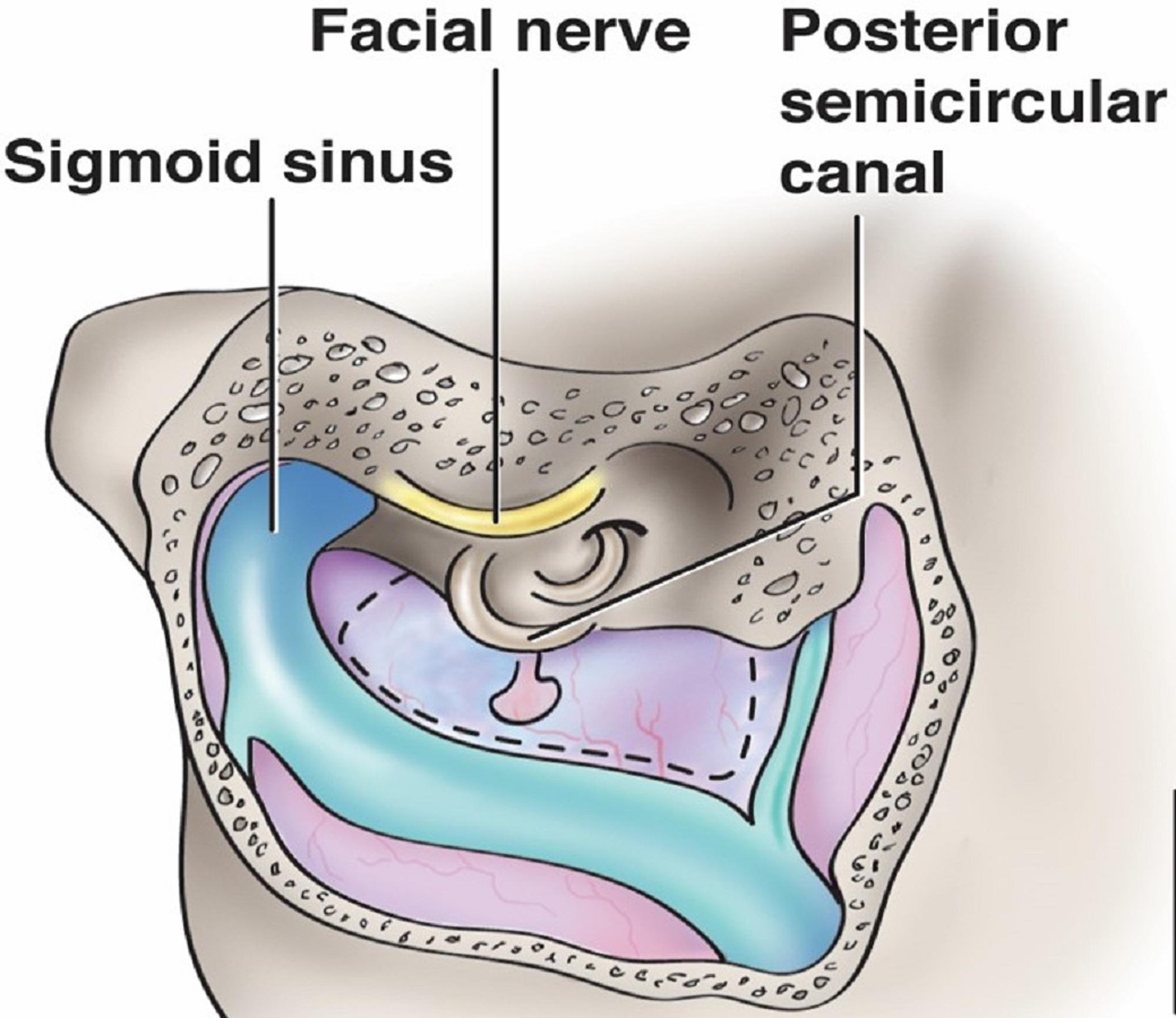 Cureus | Intracranial Anatomical Triangles: A Comprehensive ...