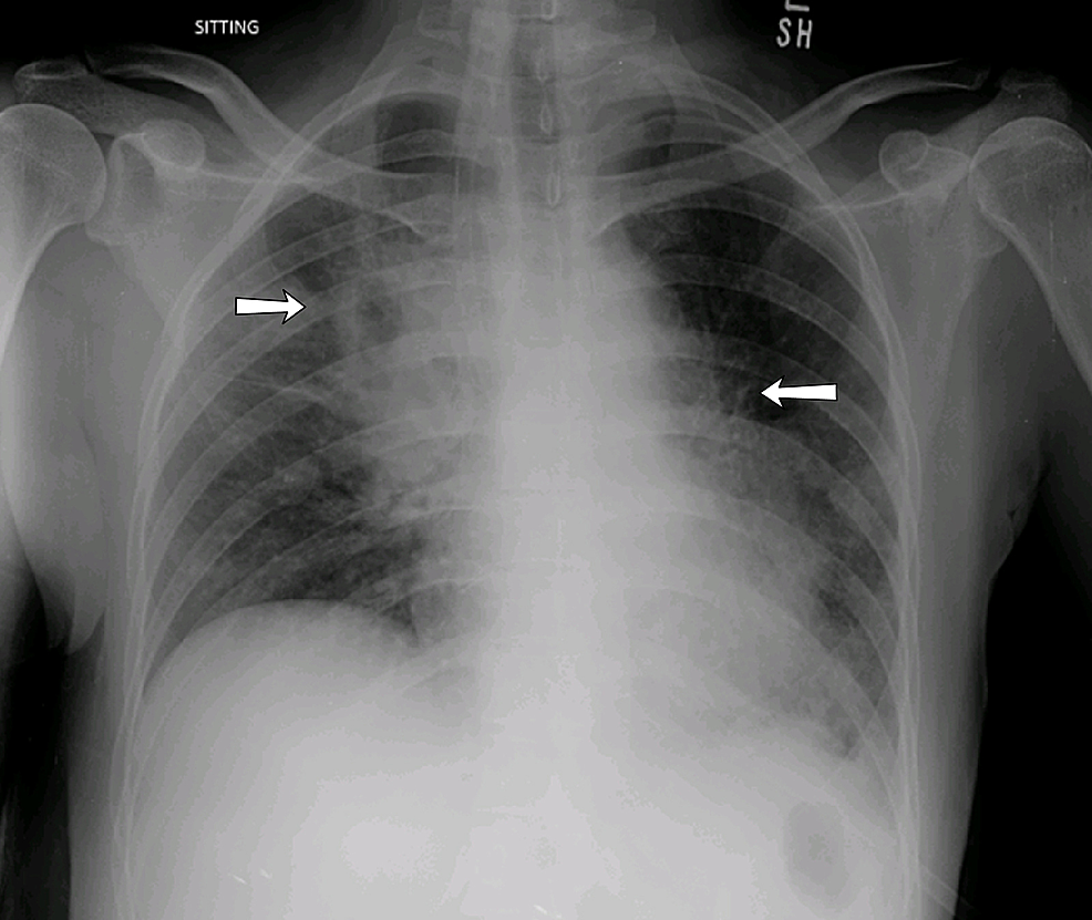 Image-showing-the-chest-X-ray.