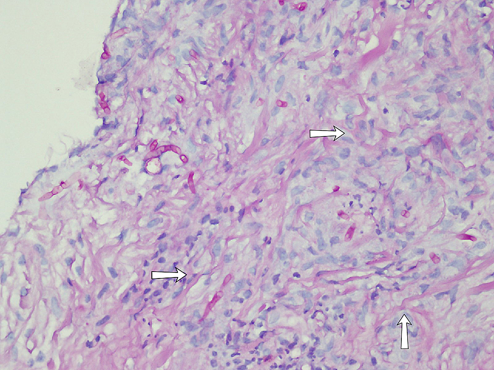 Image-showing-the-biopsy.