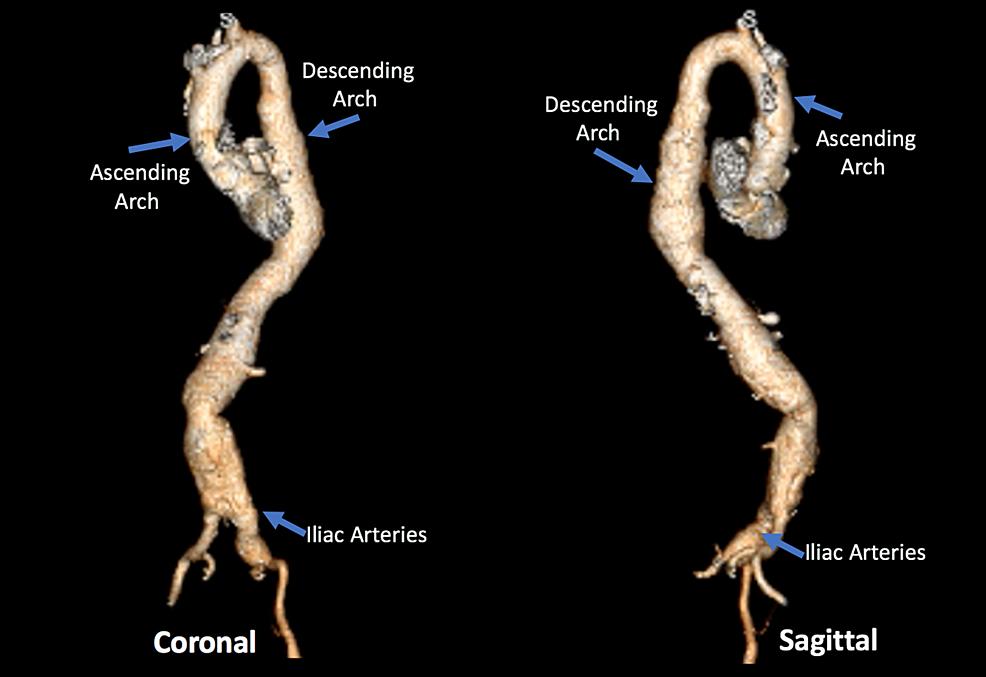 3-dimension-aorta.