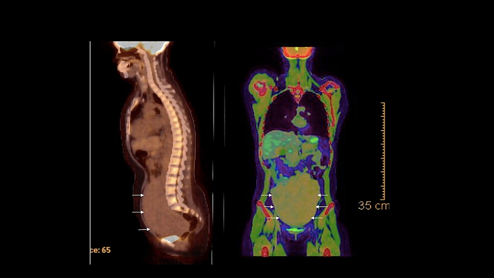 PET-CT-of-patient-shows-a-large-mass-in-the-pelvis-(white-arrows)