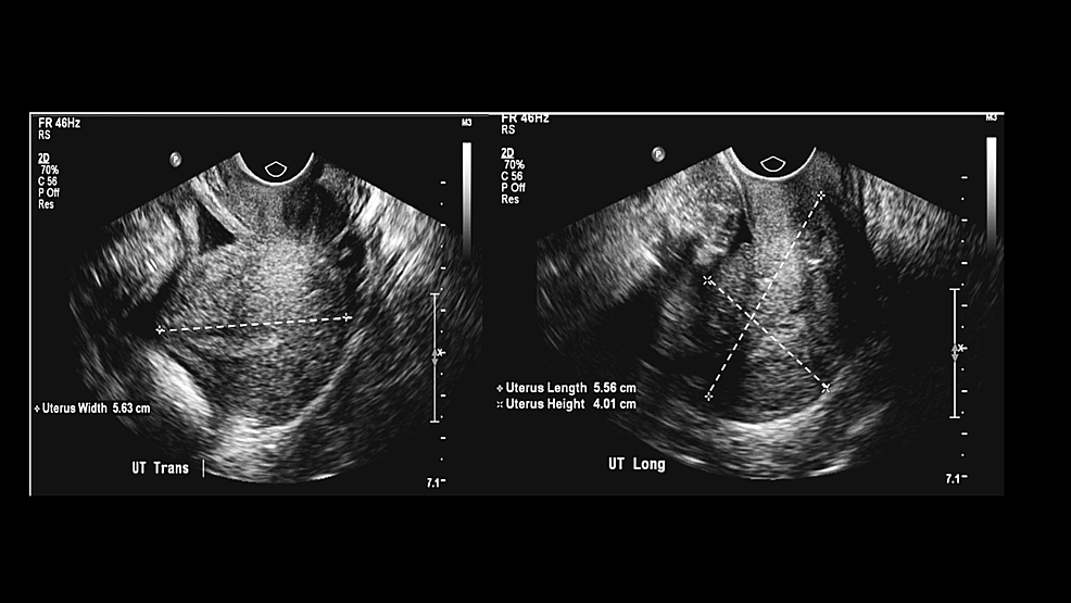 Ultrasound-of-the-abdomen-shows-a-large-intrauterine-mass.