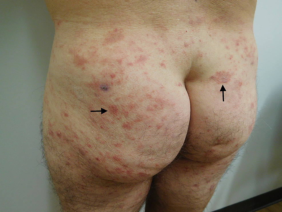 Testopel-associated-dermatitis-on-buttocks-and-lateral-thighs