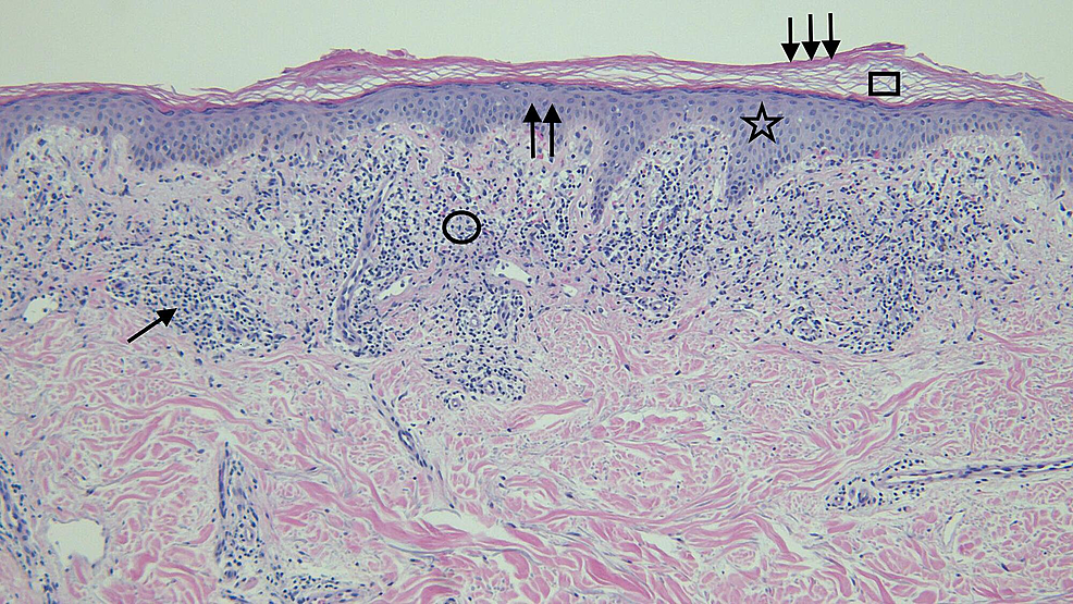 Distant-view-of-the-microscopic-examination-of-testosterone-associated-vacuolar-interface-dermatitis
