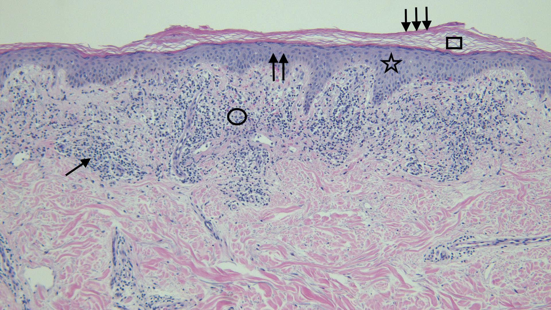 Cureus   Testosterone Pellet Associated Dermatitis: Report