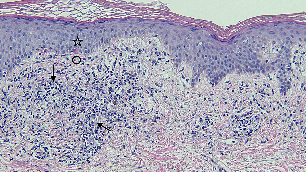 Closer-view-of-the-microscopic-examination-of-testosterone-pellet-associated-vacuolar-interface-dermatitis