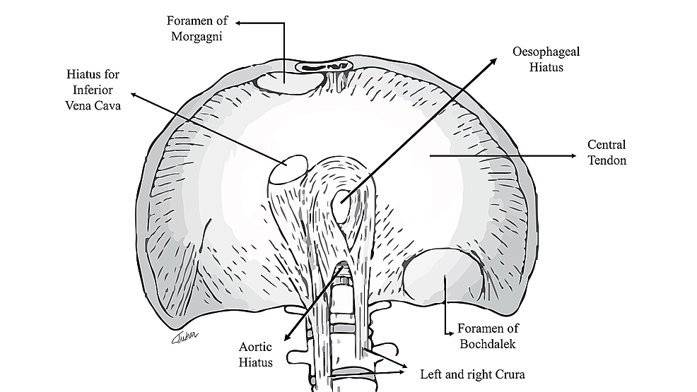 Cureus | Hernia of Morgagni in the Elderly: A Case Report