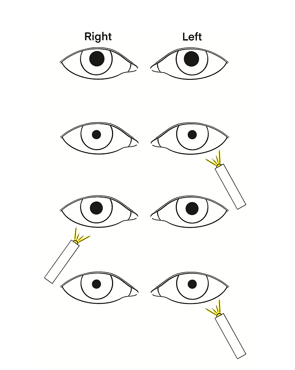 Detection-of-an-afferent-pupillary-defect-in-the-right-eye-using-a-swinging-light-test.-
