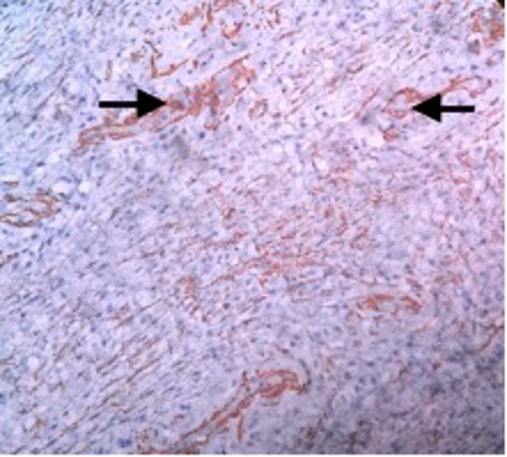 Immunohistochemistry-with-SMA-shows-focal-positivity-(arrow).