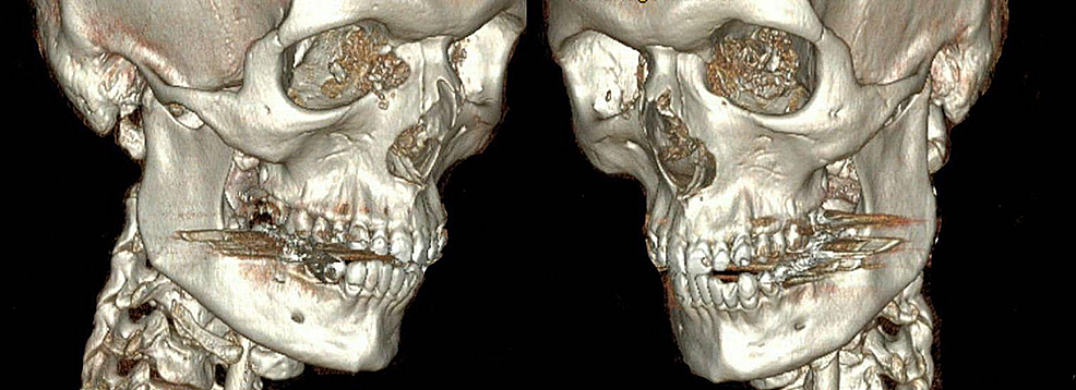 Three-dimensional-reconstruction-of-patient's-admission-computed-tomography-scan-demonstrating-severe-comminution-of-medial-orbital-walls-bilaterally