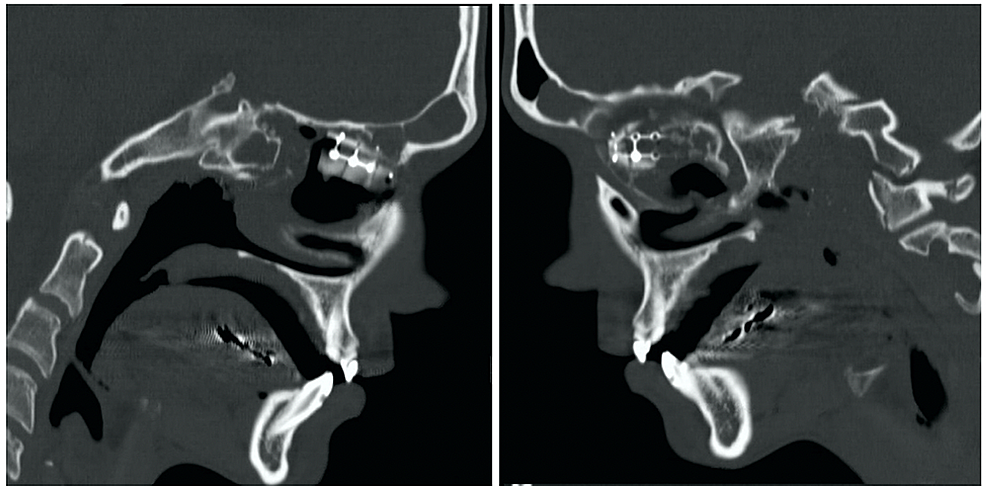 Sagittal-computerized-tomography-showing-the-placement-of-graft-on-right-(left)-and-left-(right)
