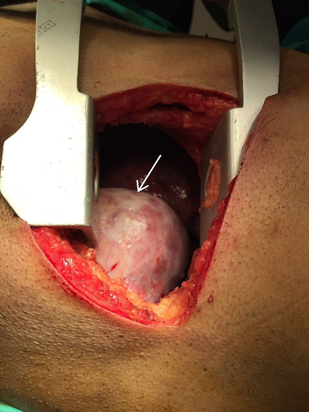 Intra-operative-view-of-the-mass-(white-arrow)