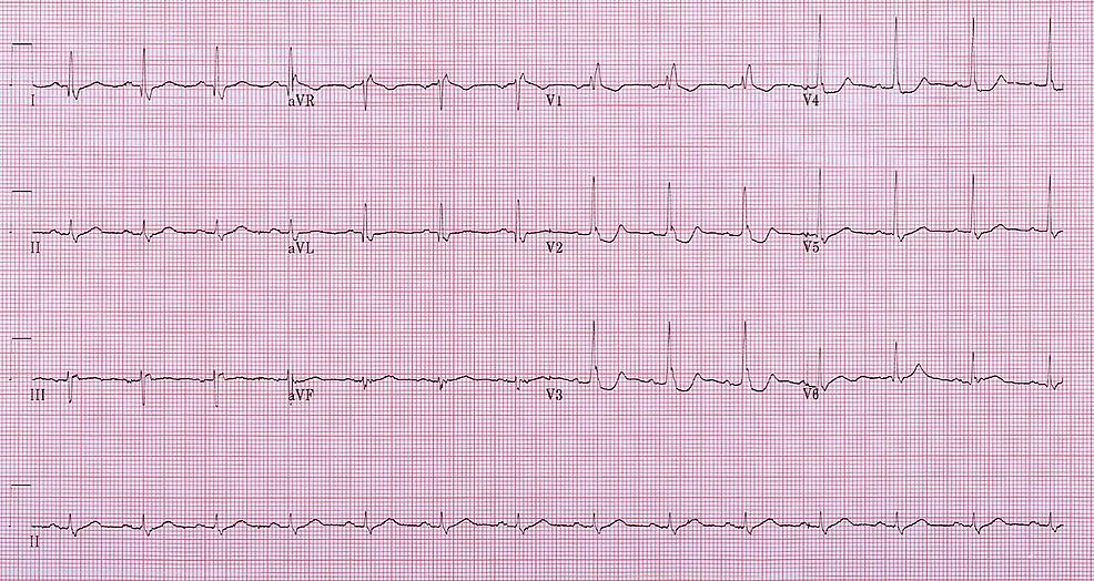 Twelve-lead-ECG-demonstrating-ST-depression-in-V2-V4-and-RBBB-with-rSR'-in-V1.-