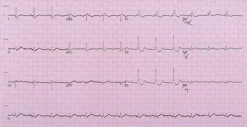 Fifteen-lead-ECG-demonstrating-potential-ST-elevation-but-definite-convex-morphology-in-V8-V9.-
