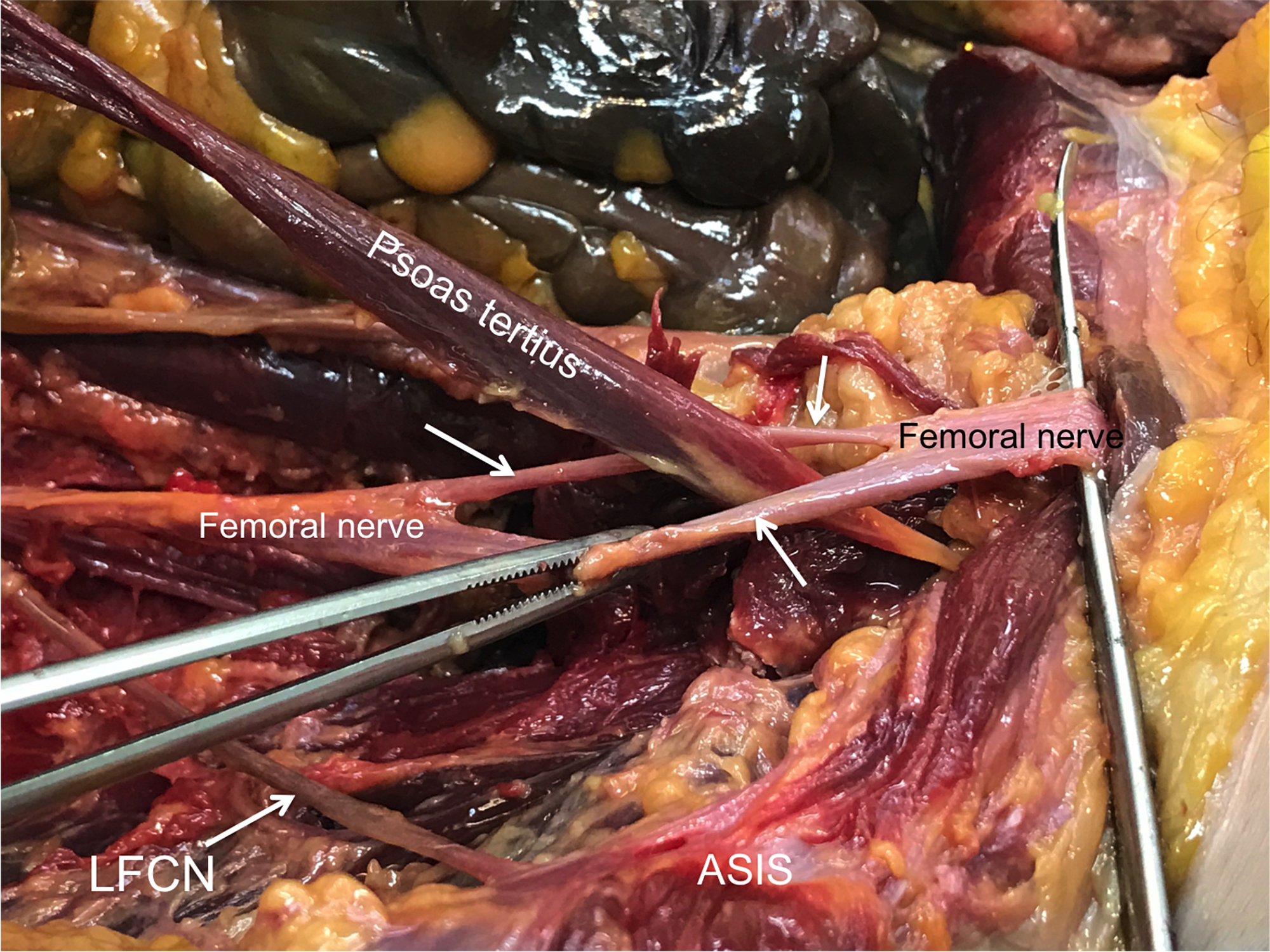 Cureus | Split Femoral Nerve Due to Psoas Tertius Muscle ...
