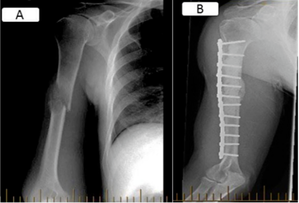 AP-views-of-a-right-mid-diaphyseal-humerus-metastatic-lesion-(A)-managed-with-plate-osteosynthesis-and-cementoplasty-(B).-